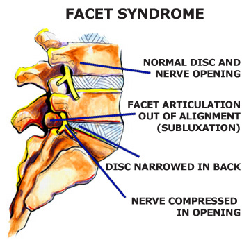 The Lumbar Facet Syndrome