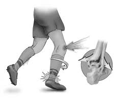 Ankle stability and performance