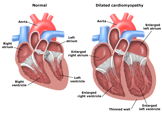 Exercise capacity and heart failure