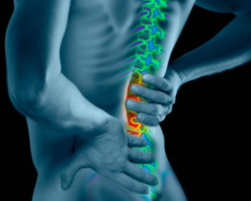 The McKenzie approach to backpain