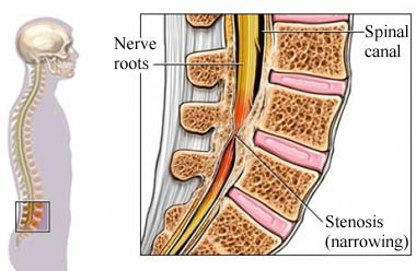 Advanced spinal stenosis and physical therapy